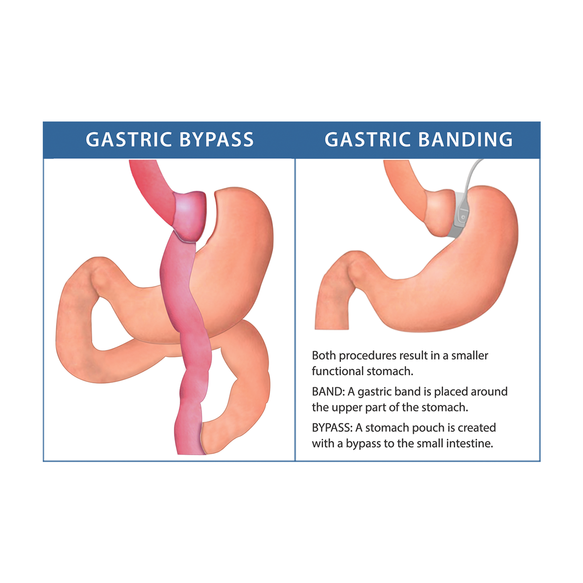 Gastric Bypass Explanatory Graphic